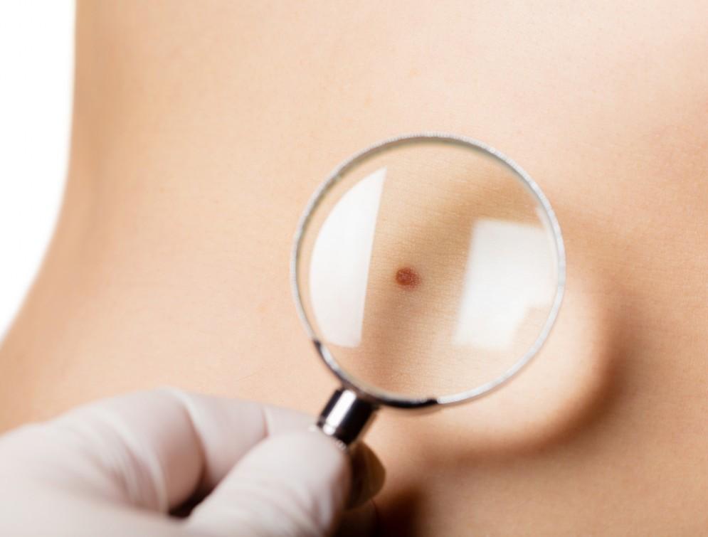Платный консультативный прием врача дермато -венеролога высшей категории